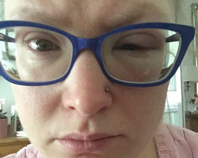 Jovem precisa de transplante de córnea por nadar com lentes de contato