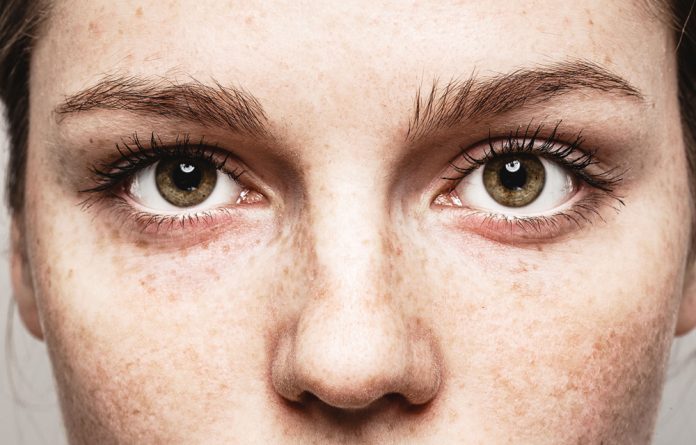 É possível ter vermes nos olhos?