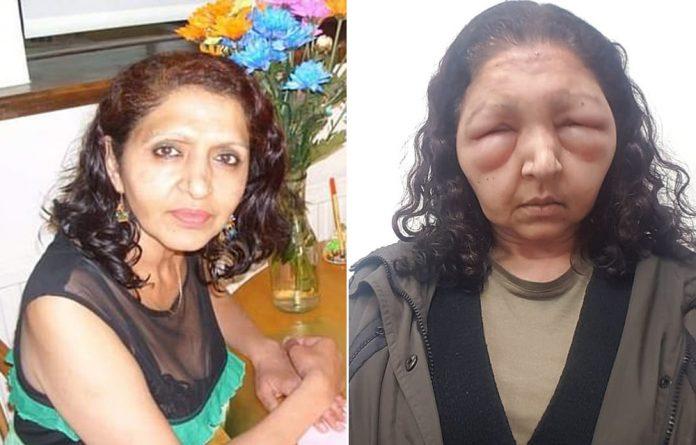 Mulher fica desfigurada após usar tintura natural de cabelo